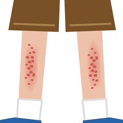 乾燥性湿疹